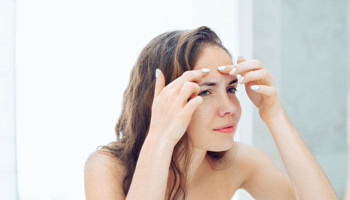 How to Cure Your Pimples Using This Top secret About What Really Leads to It